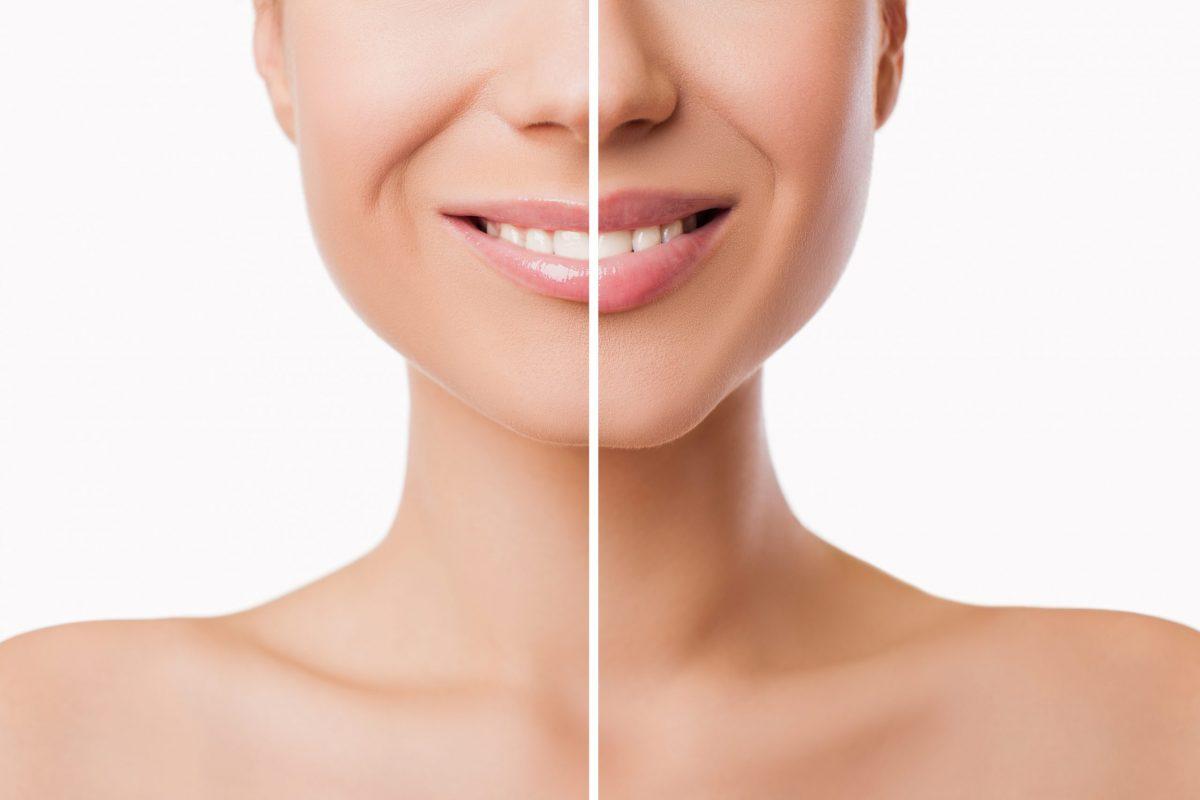 lip filler treatment at Midas Dental results in plumper lips