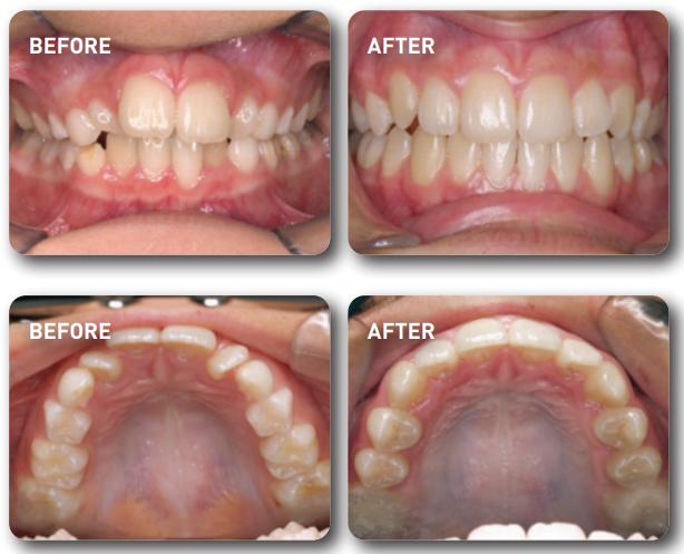 teeth before and after myobrace