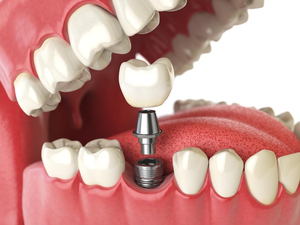 a row of teeth with a dental implant