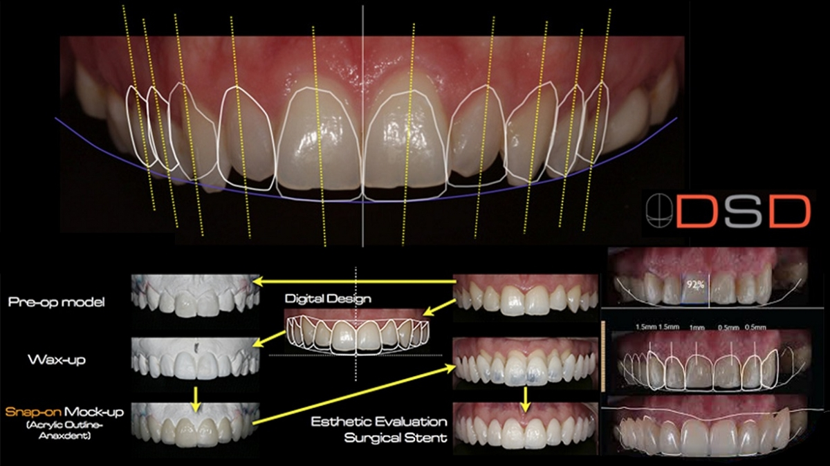 how Digital Smile Design can improve your teeth's appearance